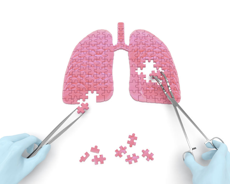 右の肺が痛い・・・